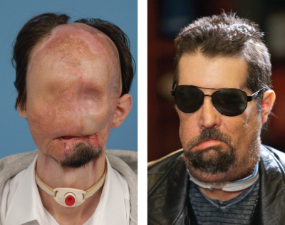 Face Transplant Recipients Share Messages Of Gratitude